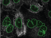 Hela-p120iKD cells after doxycycline-induced p120 knockdown (green=LaminA/C; white=F-actin)